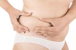 Растяжки из-за быстрой потери веса