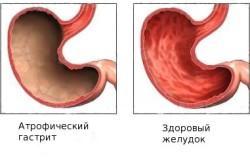 Здоровый желудок и желудок с атрофическим гастритом