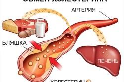 Снижение холестерина после приема процедур в инфракрасной сауне