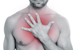 Изжога - симптом эрозивного бульбита