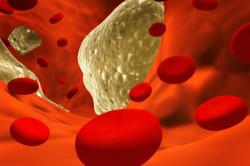 Снижение уровня холестерина после использования жировой диеты