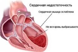 Схема острой сердечной недостаточности