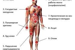 Симптомы заболеваний печени