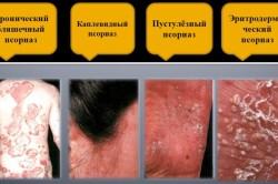 Польза сала для лечения псориаза
