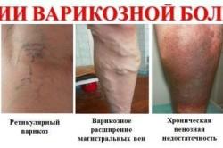 Варикоз - противопоказание к приему гематогена