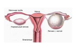 Киста яичника - осложнение при отсутствии менструаций