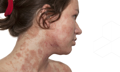 Проблема аллергического дерматита