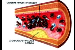 Польза сала для профилактики атеросклероза