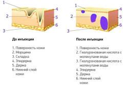 Действие укола для похудения