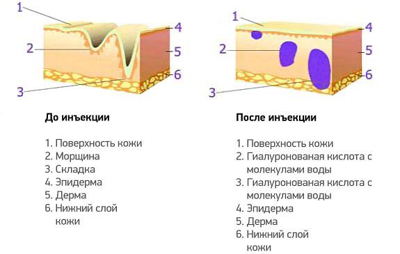 уколы в живот для сжигания жира.дермастабилон