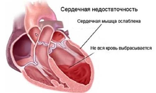диета при сердечной недостаточности и отеках ног