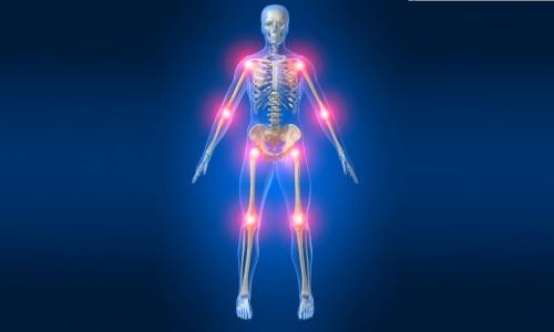 Проблема болей в суставах