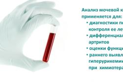 Анализ мочевой кислоты